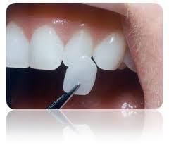 Yaprak Porselen Diş